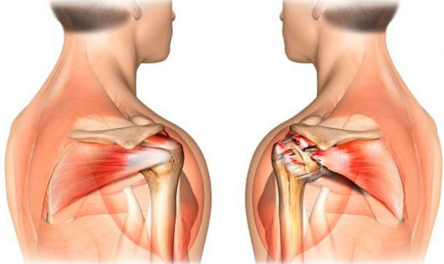 Боль в ротаторной манжете и почему не стоит ее игнорировать